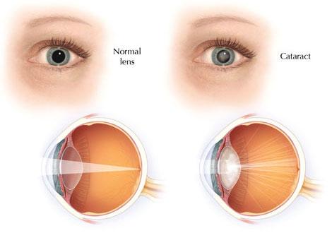 eyesite-tampabay-cataract-vision